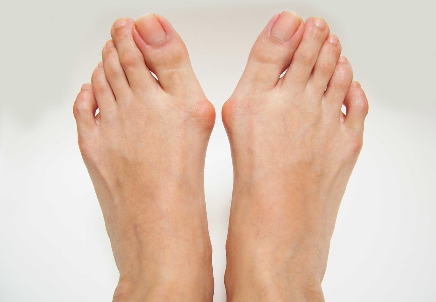 Joanetes, calos e unhas encravadas nos pés
