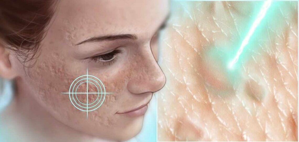 Conheça alguns tratamentos para remoção de cicatrizes