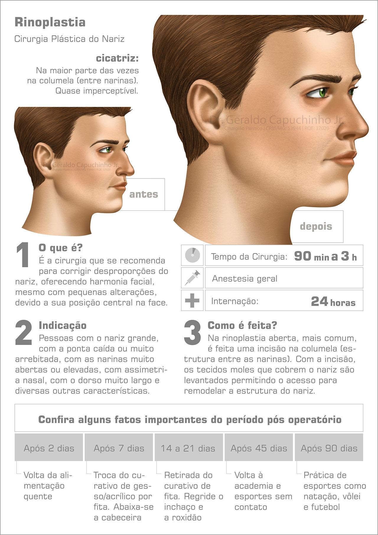 Infográfico rinoplastia