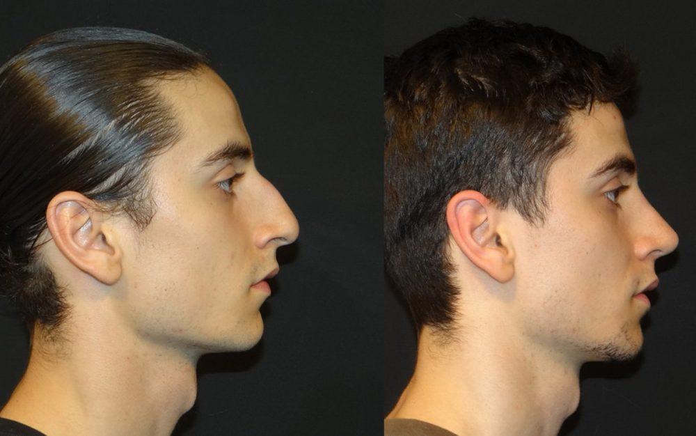 Rinoplastia Masculina - cirurgia de nariz